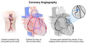 Coronary_Angiography