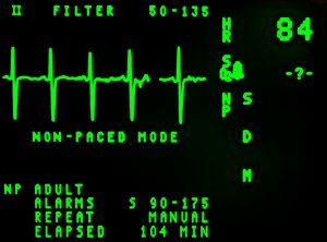 NCA-ECG